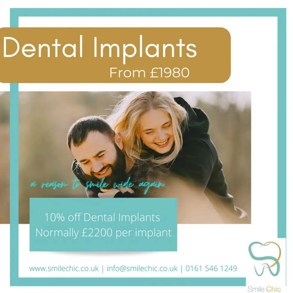 Special Offers On Dental Implants