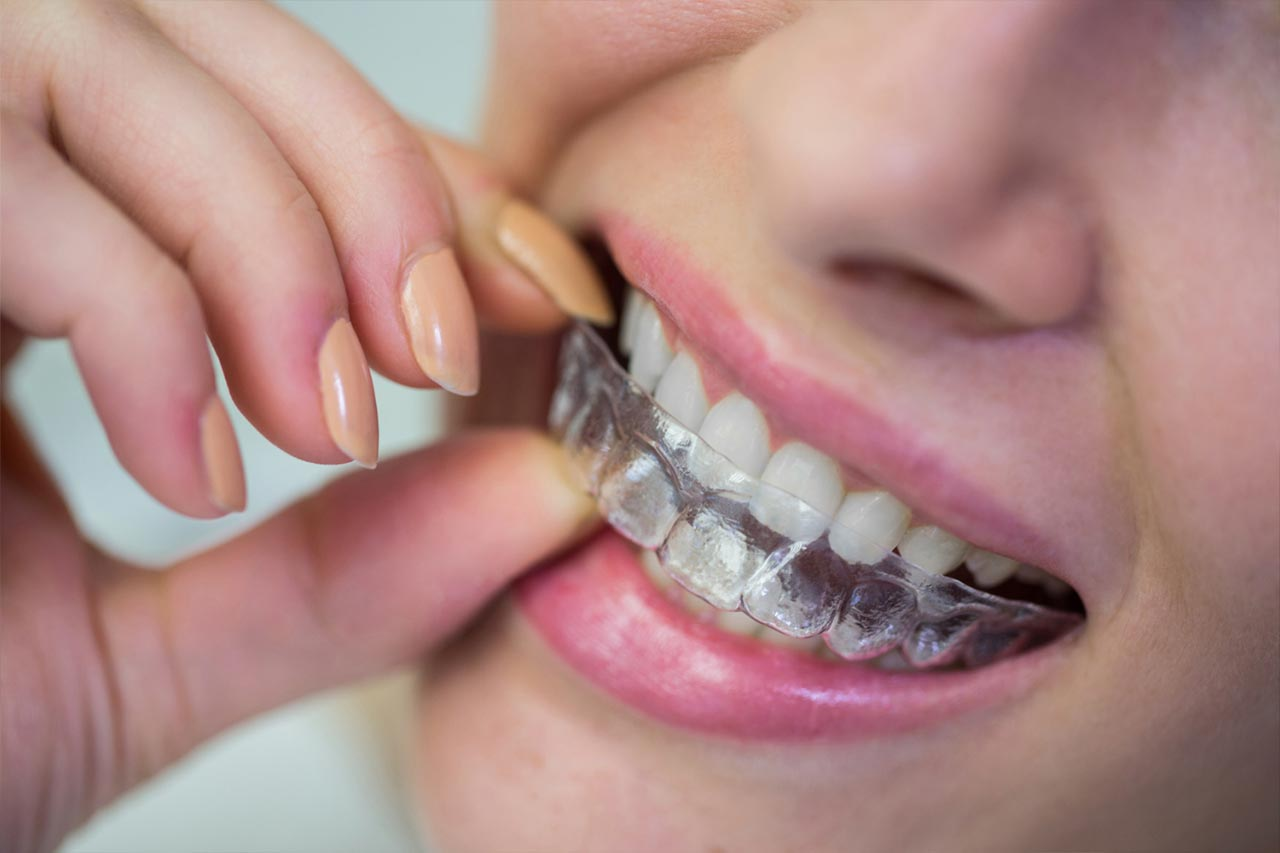 Removable braces