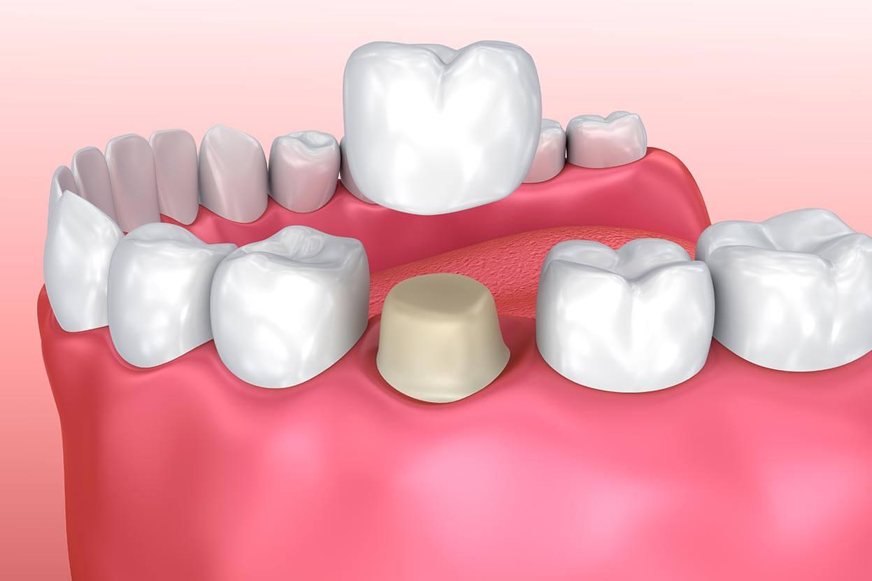 Depiction of a dental crown