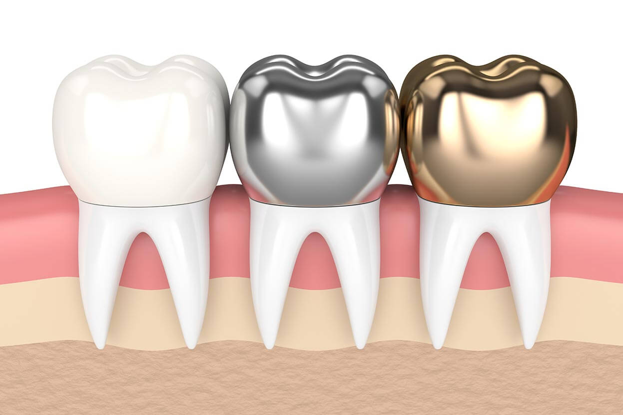 Dental Crown Diagram