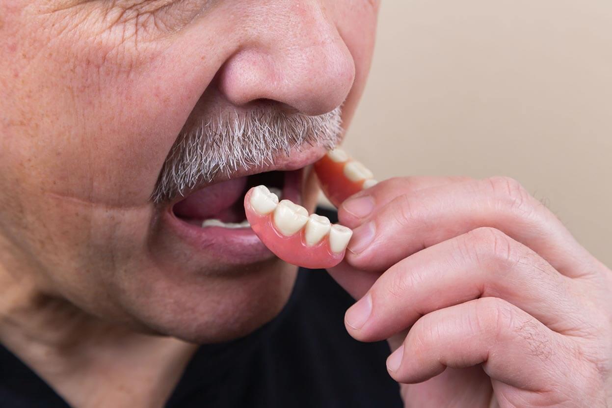 Man Inserting Dentures
